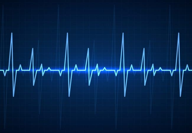 Commit | Blue heart beat lines